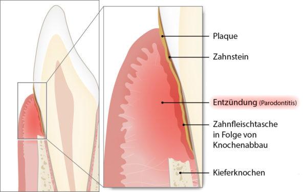 Parodontitis im Querschnitt