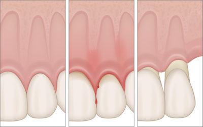 Folgen der Parodontitis