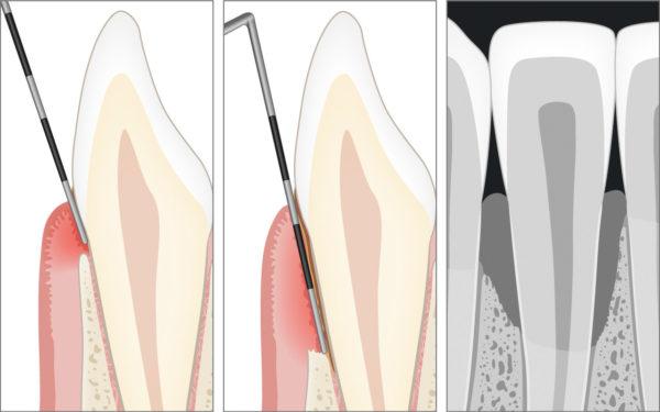 Diagnose der Parodontitis